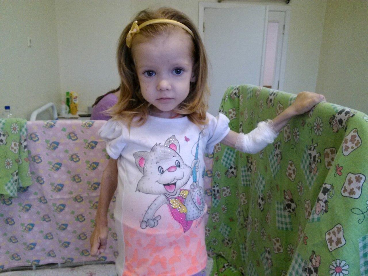 Болезнь гиршпрунга у детей симптомы фото начальная стадия